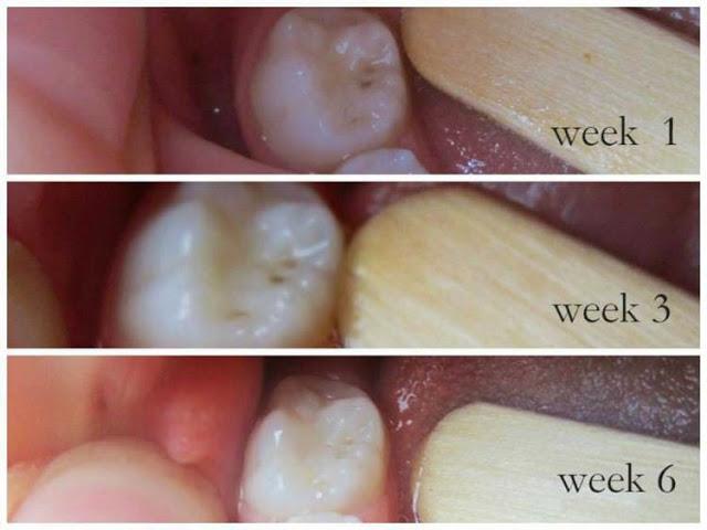 ff2d7 cavities healing - Las Caries se pueden sanar de forma NATURAL!